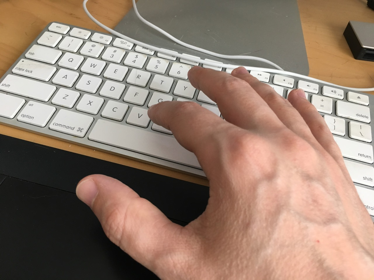 hand pain from typing